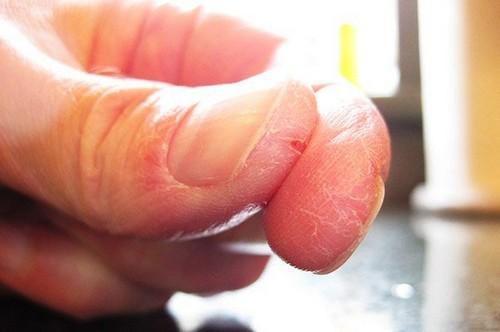 Трещины на пальцах возле ногтей рук причины и лечение у взрослых