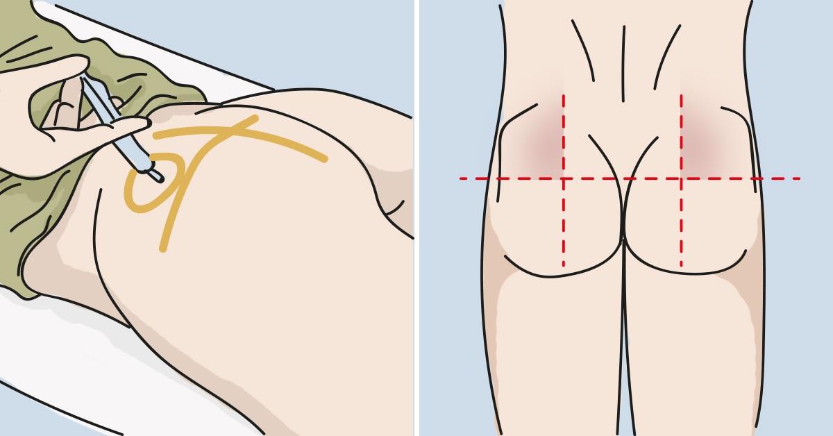 Как правильно сделать укол в руку