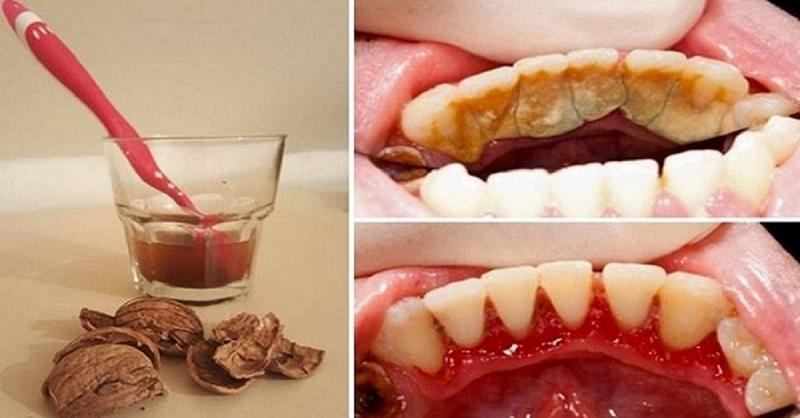 Как избавится от камней на зуба в