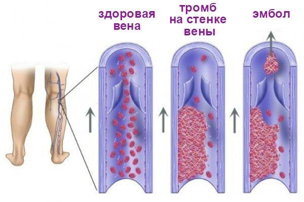 Продукты питания при тромбозе вен