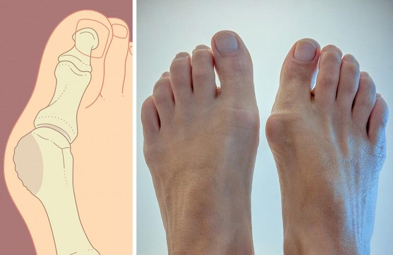 Как избавиться от косточки на ноге в